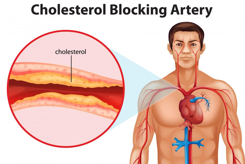 "The fatty oils found in hake promote the production of HDL, the so-called ""good cholesterol."""